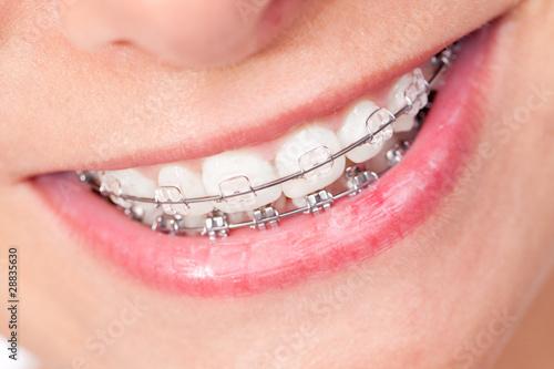 canvas print picture Mund mit Zahnspange und schönen Zähnen