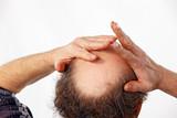 hands rubbing bald head poster