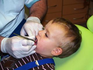 Little girl on dentist prevention examination