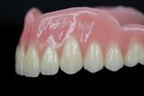 Dritte Zähne, seitlich, schwarz
