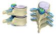 Leinwandbild Motiv Prolapse of intervertebral disc isolated on white