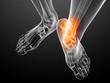 transparenter Fuß mit schmerzendem Knöchel