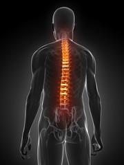 transparenter Körper mit Rückenschmerzen