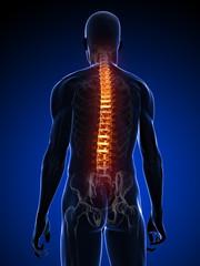 menschliche Anatomie - Rückenschmerzen