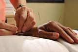 acupuncture treatment poster