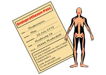 Endprothesen-Pass