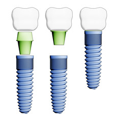 Dental implant. Elements view.
