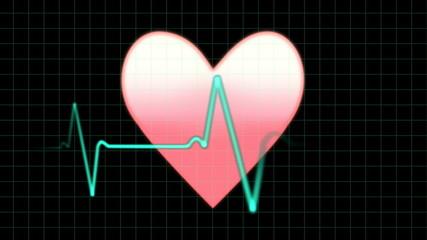 EKG heartbeat monitor, animation