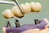 Fototapety Dental implant head and bridge
