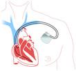 Herzschrittmacher - 29660810