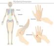 rückenschmerzen - reflexzonenmassage