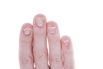 Psoriasis on Fingernails Isolated White Background