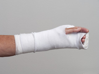 Long cast on injured arm and hand