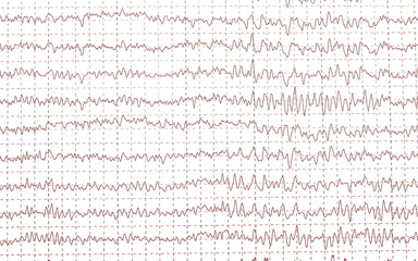 electroencephalogramme (EEG)