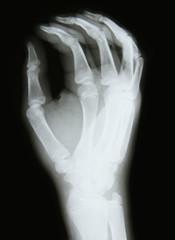 x-ray image of the bones of arm