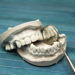 Gipsmodell Zähne