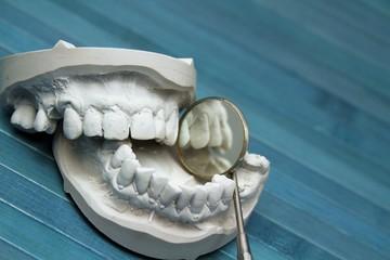 Zahnspiegel mit Zahnersatz