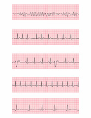 Cardiac dysrhythmia EKG flashcards