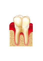 Odontología gingivitis