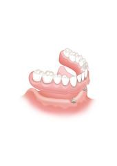 Odontología implante