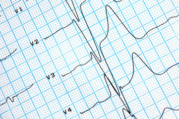 Close-up of real ecg graph on blue colored paper