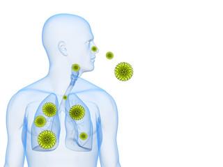 menschliche Anatomie - Pollenallergie