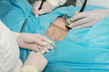 Операция в хирургическом отделании
