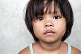 Young girl in the Philippines living in poverty poster