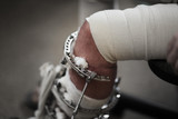Broken leg in metal Ilizarov apparatus. Closeup, shallow DOF. poster