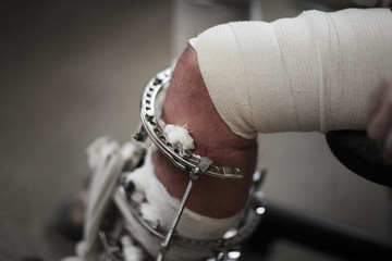 Broken leg in metal Ilizarov apparatus. Closeup, shallow DOF.
