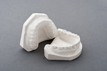 Dental plaster mold