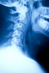 C-Spine - Xray