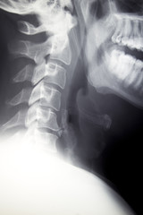 Cervical Spine - Lateral C-spine Xray