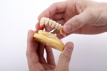 denture teeth