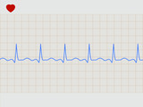 Normal electronic cardiogram. EPS 8 poster