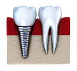 Dental implant - implanted in jaw bone. Isolated on white poster