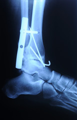 radiograph of human fracture ankle