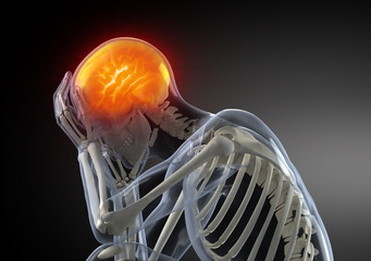 Head Pain migraine concept