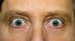 Starrende Augen