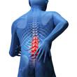 back hurt - 30731846