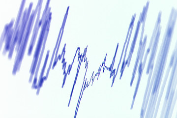 Audio, seismic or stock market wave diagram