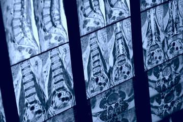 MRI image of human spine