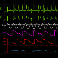 Physiologic monitor background