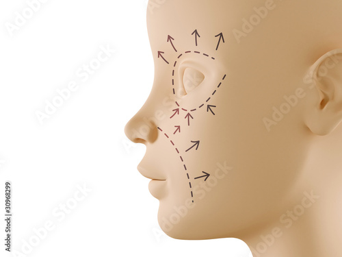 Neutral face profile with aesthetic surgery sign
