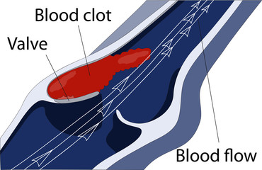 venous thrombosis1