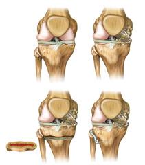 Desviación de rodilla
