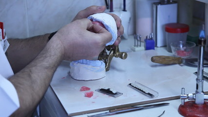 Manufacture of  Dental Prosthesis