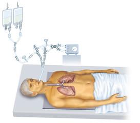 Lavado pulmonar