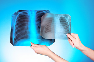 X-Ray Image of two chest on blue background in hand. One man in