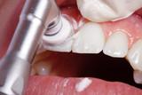 Kosmetische Zahnreinigung mit Polier Paste, Schritt 13 - 31594475